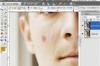 Avoir une peau parfaite sur vos photos - Tutoriel retouche